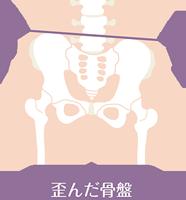 歪んだ骨盤